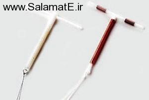 روش IUD برای جلوگیری از بارداری   ضد بارداری