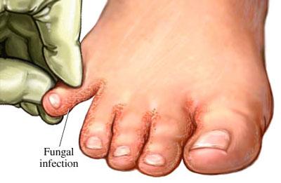 کچلی پا