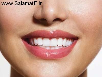 چرا بعضی از دندان ها آنقدر سفید و شفاف است ؟