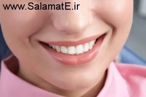 غذاهایی که باعث تغییر رنگ دندان ها می شود