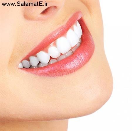 نوار دندان