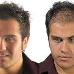 آقایانی با موهایی کم پشت