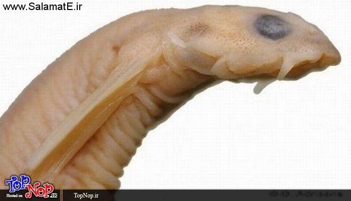 با این روش ها انگل ها را از بدنتان دور کنید