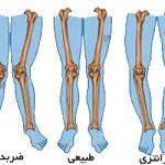 علت به وجود آمدن بدشکلی در ناحیه استخوان ها چیست ؟
