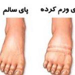 کفش شما بسیار تنگ است: