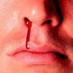 علت خون دماغ های مکررم چیست ؟