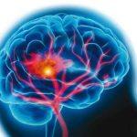 خطرات بسیار بالای سکته مغزی
