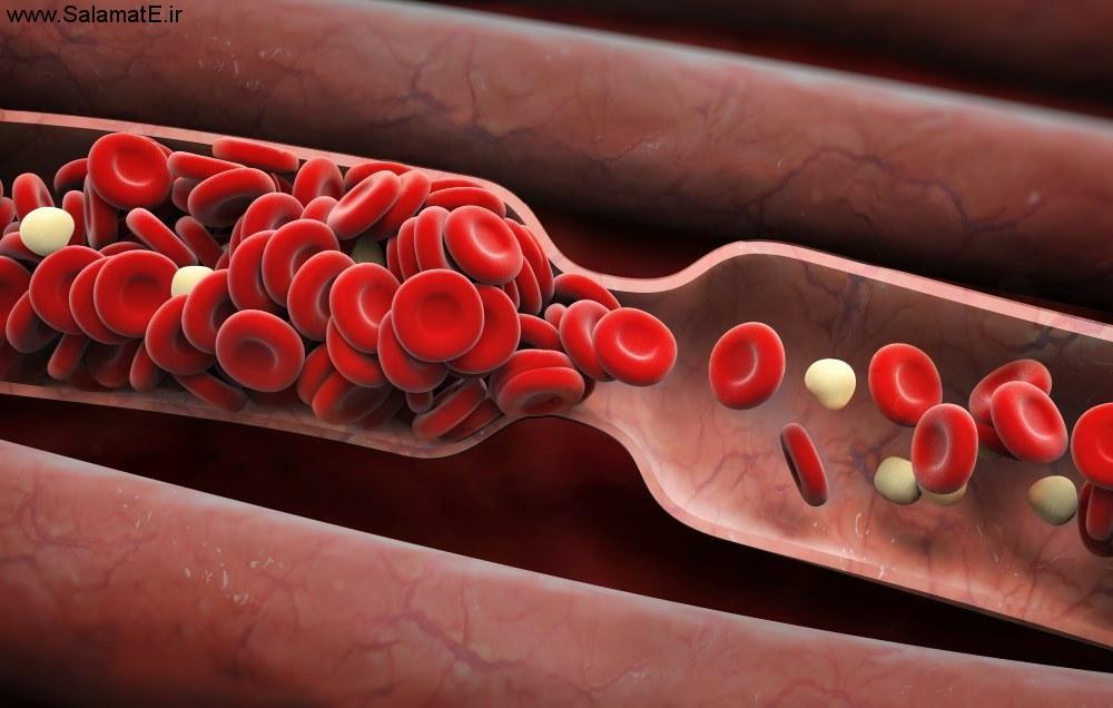 چطور بفهیم در بدنمان لخته خون وجود دارد ؟