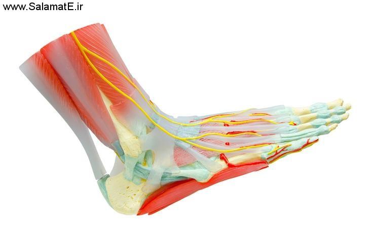 درد در بازو یا پا: