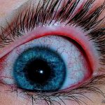 علت-قرمزی-چشم ها (2)